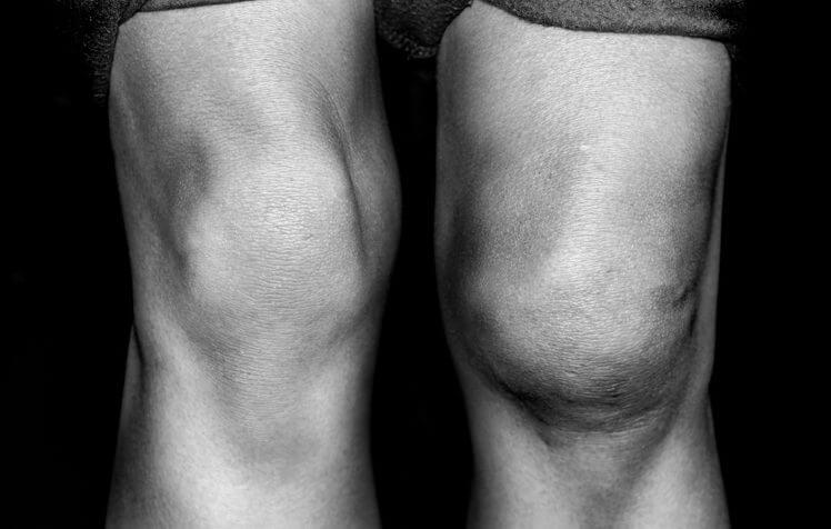 kneeswollen